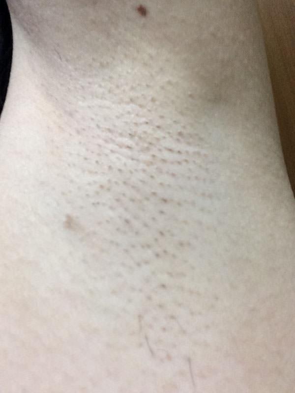 ケノンでワキ脱毛3回目を終えてから、約2週間後の肌の様子