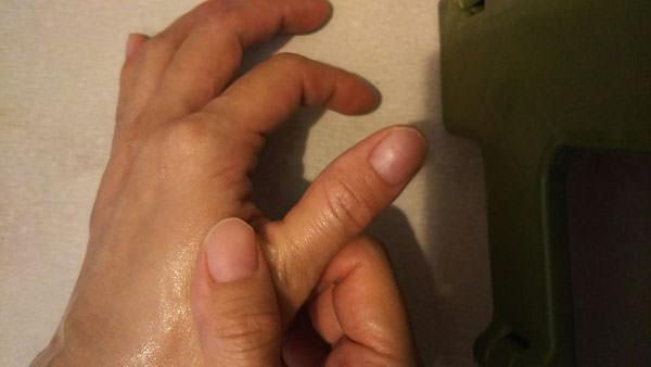 指のむくみ【取り方】マッサージ・グッズで解消