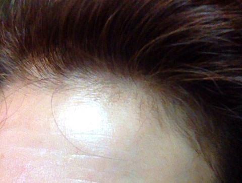 ベルタ育毛剤をはじめて使用する直前の生え際の画像
