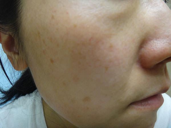 ポーラ サインズショット使用前の目じり・頬の肌状態