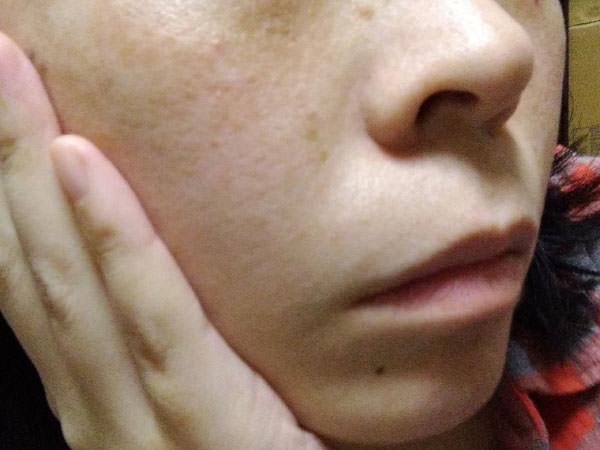 スクワランオイルで顔のフェイスケア