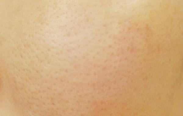 BARTH 中性重炭酸フェイスマスク使用前の肌