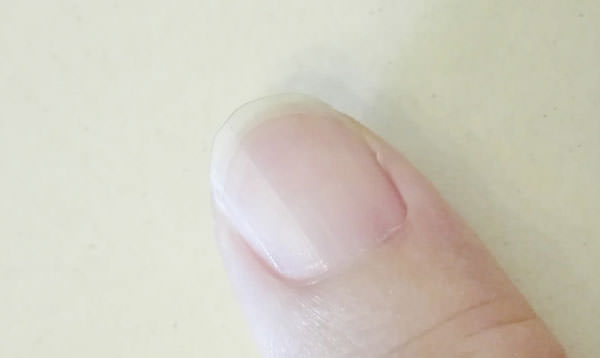 005parado-nail-foundation
