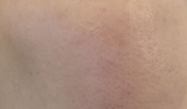 米肌石鹸で洗った後のお肌