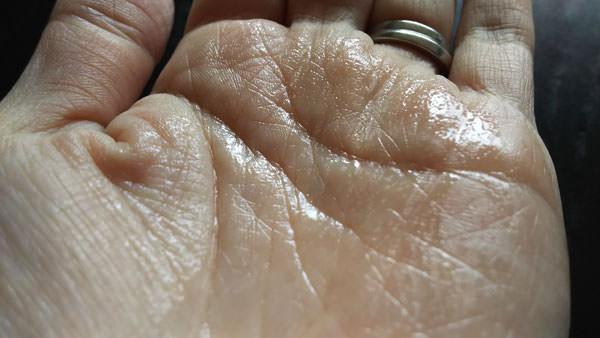 ラクト―セラミド原液を手に馴染ませた