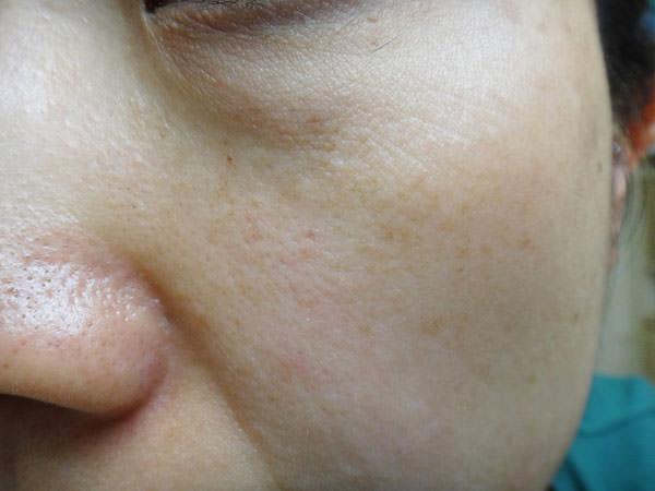 草花木果 「よもぎ」スキンケアを使う前のお肌