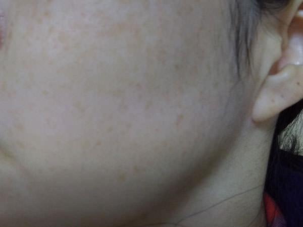 敏感・乾燥肌スキンピールバーAHAマイルド レビュー評価