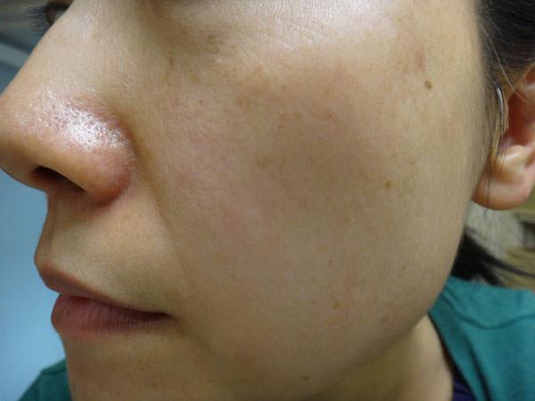 草花木果 「よもぎ」を使う前の頬