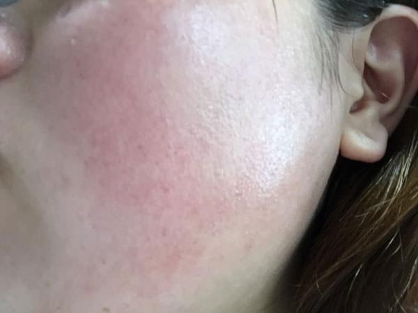 薬用ホワイトニングクリアローションの肌感触