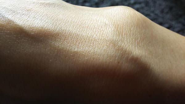 ヒルドイドを塗った後の肌