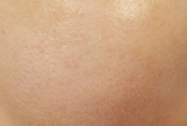 メビウス シミウスパーフェクトBBクリームの使用後の肌