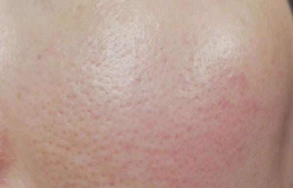 メイベリン スーパーウルトラカバークッションBB使用前の肌