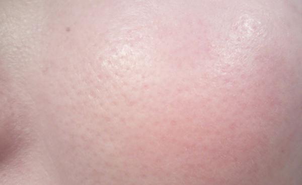 つるすべ素肌洗顔料使用後の肌