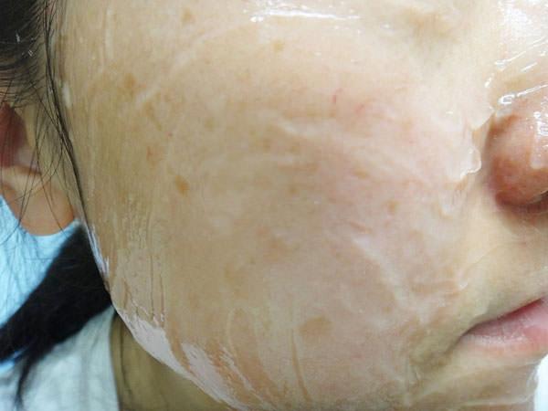 炭酸ジェルパックを顔にのせていきます