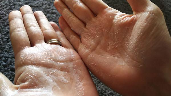 両手でヒルドイドを伸ばしている