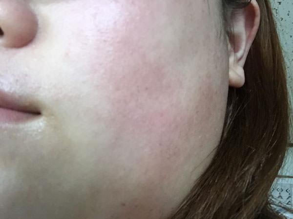 薬用ホワイトニングエッセンスの肌感触