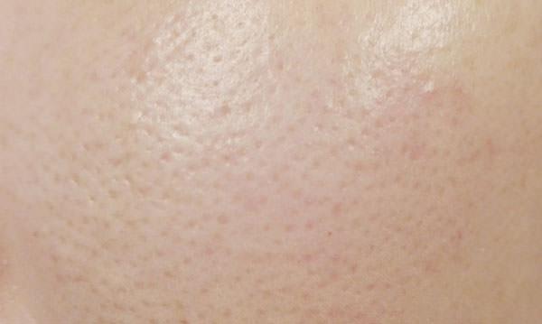 トランシーノ 薬用クリアウォッシュ使用前の肌
