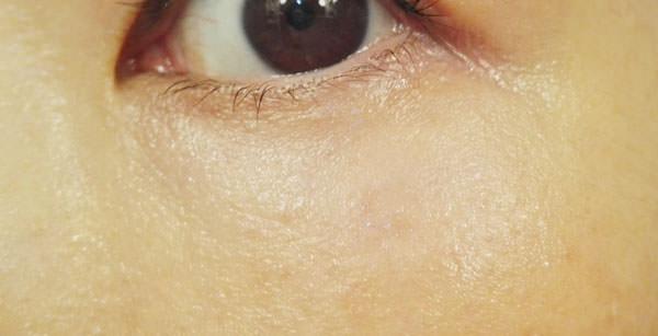 SAISEIシートマスク「目もと用」を使用後