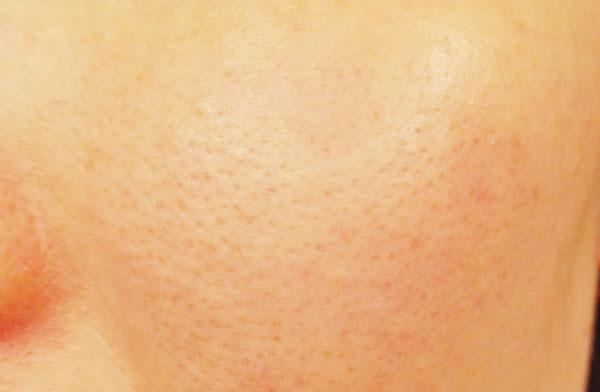 ブラックシュガーパーフェクトファーストセラム使用前の肌