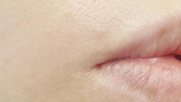 サイレントカバーコンシーラーを口元のニキビの跡に塗る