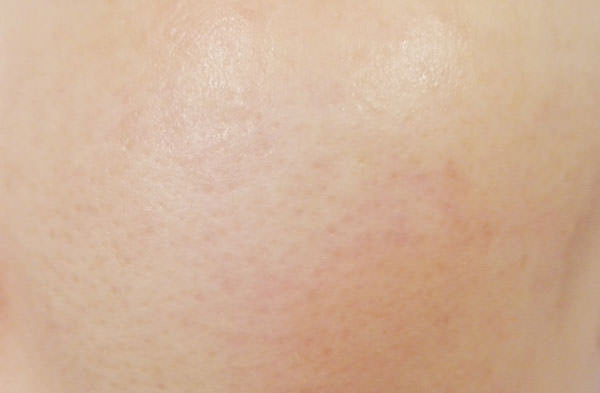 BARTH 中性重炭酸フェイスマスク使用後の肌