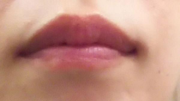 はちみつパック前の唇の写真