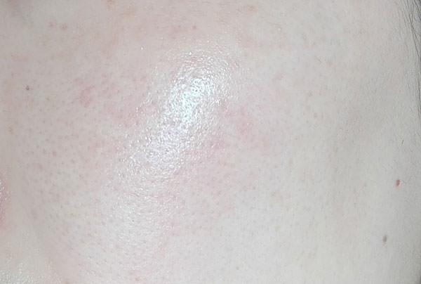 米肌「肌潤クリーム」使用後のお肌