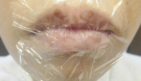 唇にオリーブオイルラップ