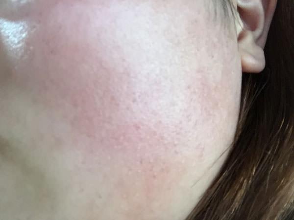 薬用ホワイトニングリペアクリームの肌感触