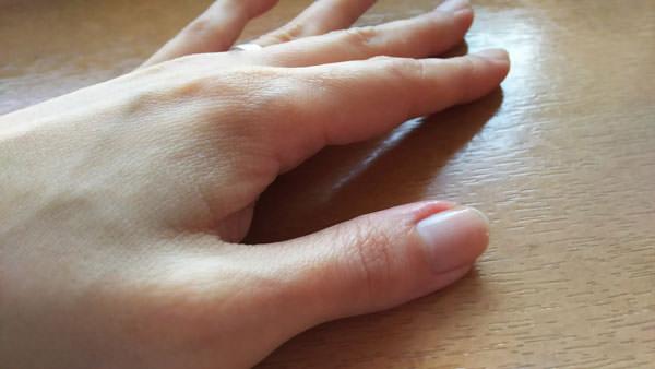 リピジュア化粧水をつけた直後の手