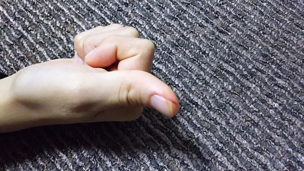 傷にタマヌオイルを塗った写真