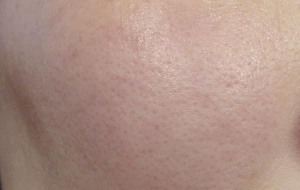 米肌「肌潤化粧水マスク」パック後の肌