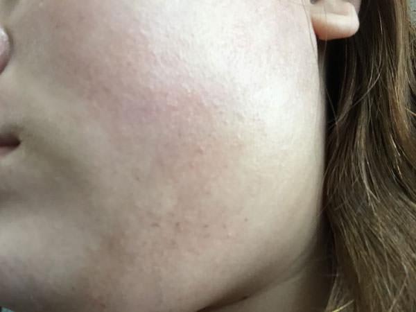エリクシールホワイトを使った3日目の肌の変化