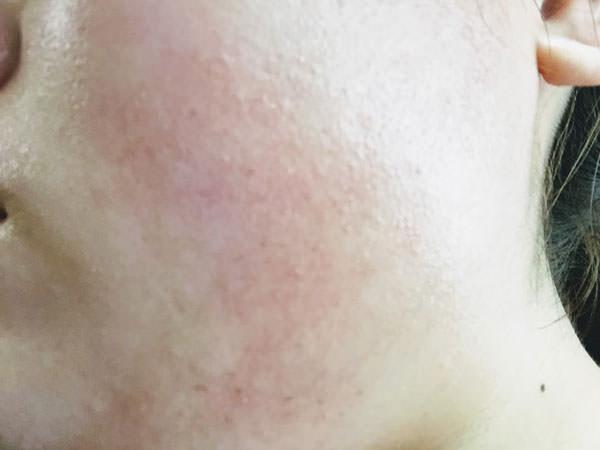 エリクシールホワイトを使った7日目(最終日)の肌の変化
