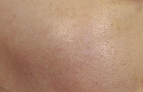 ライスフォース化粧水を付けた後の肌