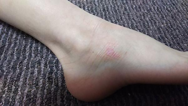 タマヌオイルを塗って1週間後の足首の写真