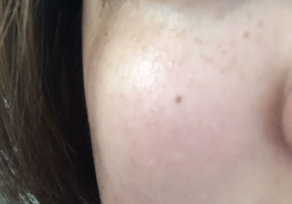 米肌 澄肌美白を使用して2週間後の肌