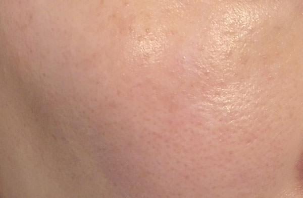 ライスフォース美容液使用後の肌
