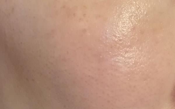 ライスフォース「ディープモイスチュアクリーム」使用後の肌