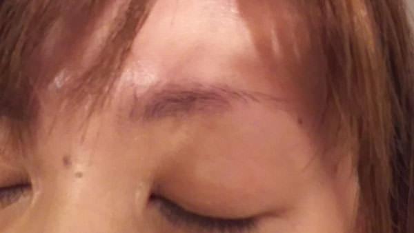 エマ―キット使用する前の左眉毛