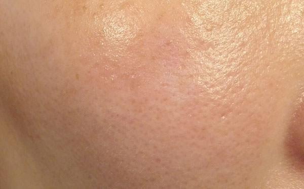 ライスフォース「プレミアムパーフェクトクリーム」使用後の肌