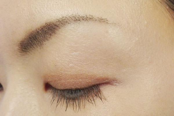 036chip-on-eyebrow