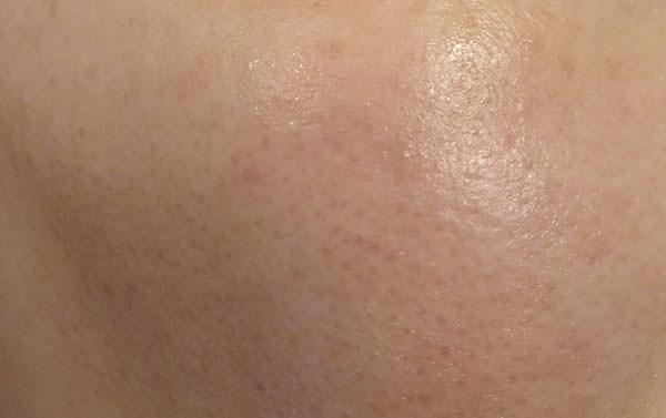 肌極を使用後の肌
