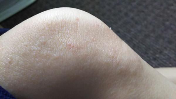 アトピー肌にアロエベラジェルを使用してみた
