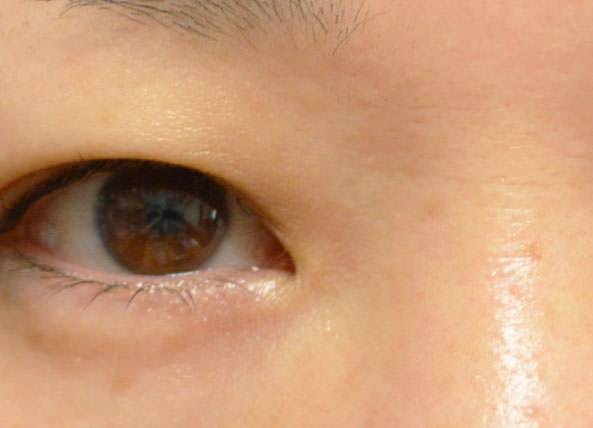 顔イボ 液体窒素治療4ヵ月後