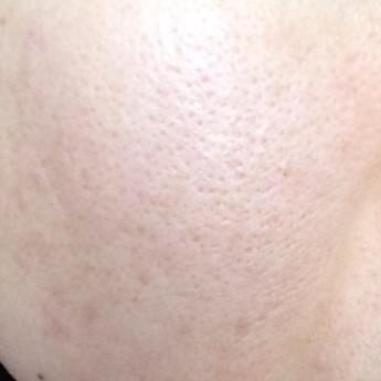 メイク前の私の肌
