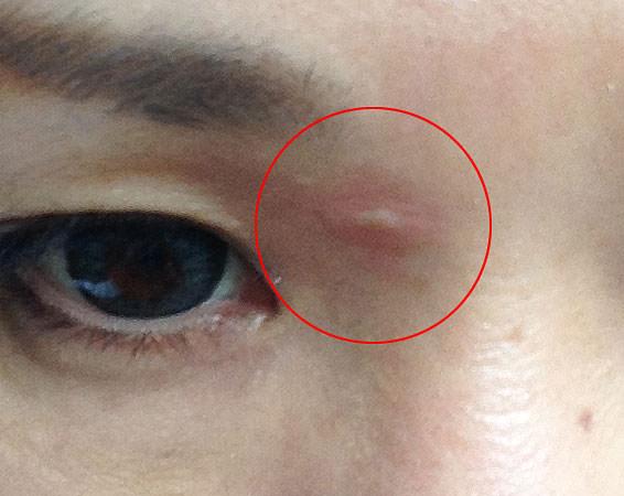 顔イボ 液体窒素治療 当日夜