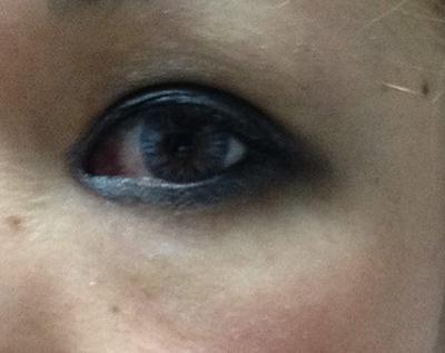 bla2-eyetape