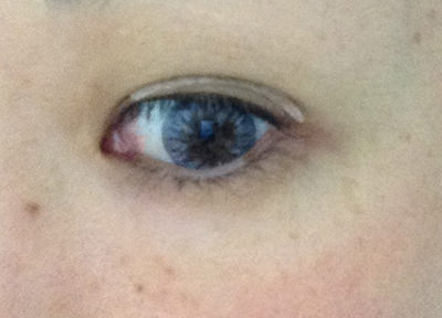 eyea-eyetape