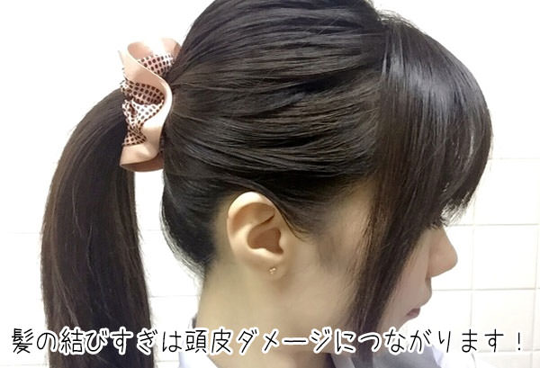 髪の結びすぎによる薄毛